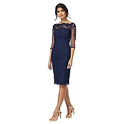 Chi Chi London - Navy lace trim dress