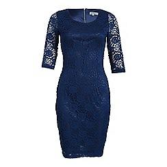 Alice & You - Blue lace layer midi dress